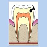 carie - A Criança e a Carie Dentaria