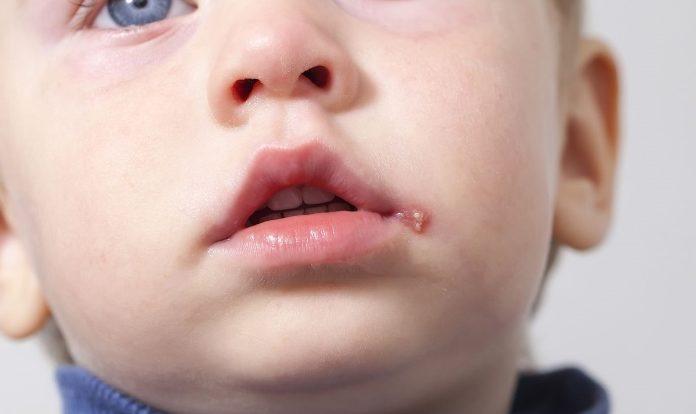 herpes labial na infancia