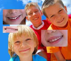 quando usar aparelho ortodontico - Quando usar o Aparelho Ortodontico?