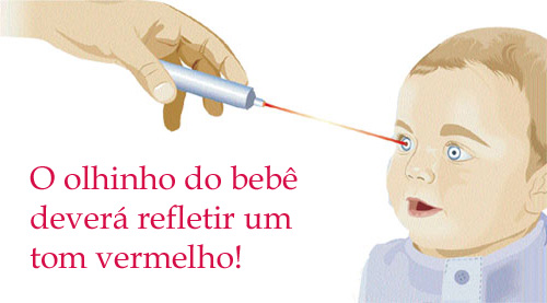 teste do reflexo vermelho olhinho - Teste do Olhinho em Recém Nascidos