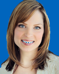 borrachinhas-coloridas-aparelho-ortodontico.jpg