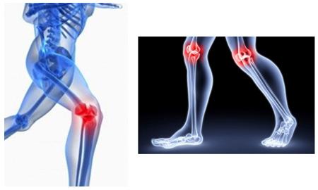 artrose-dores-articulacoes